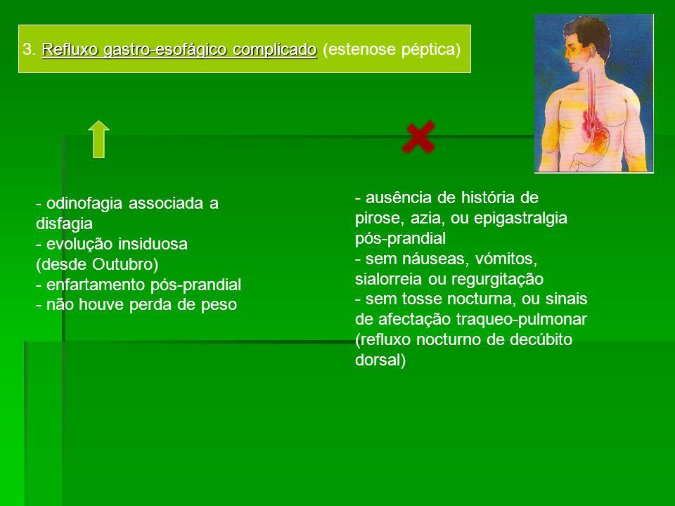 Refluxo gastro-esofágico complicado 3. Refluxo gastro-esofágico complicado (estenose péptica) - odinofagia associada a disfagia - evolução insiduosa (