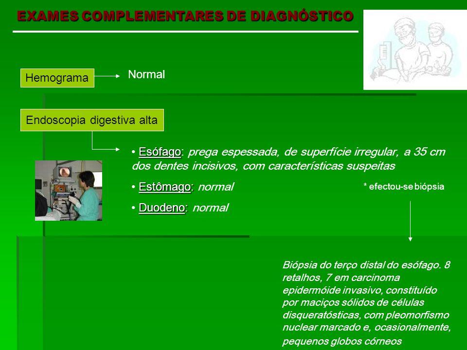 EXAMES COMPLEMENTARES DE DIAGNÓSTICO Hemograma Normal Endoscopia digestiva alta Esófago Esófago: prega espessada, de superfície irregular, a 35 cm dos