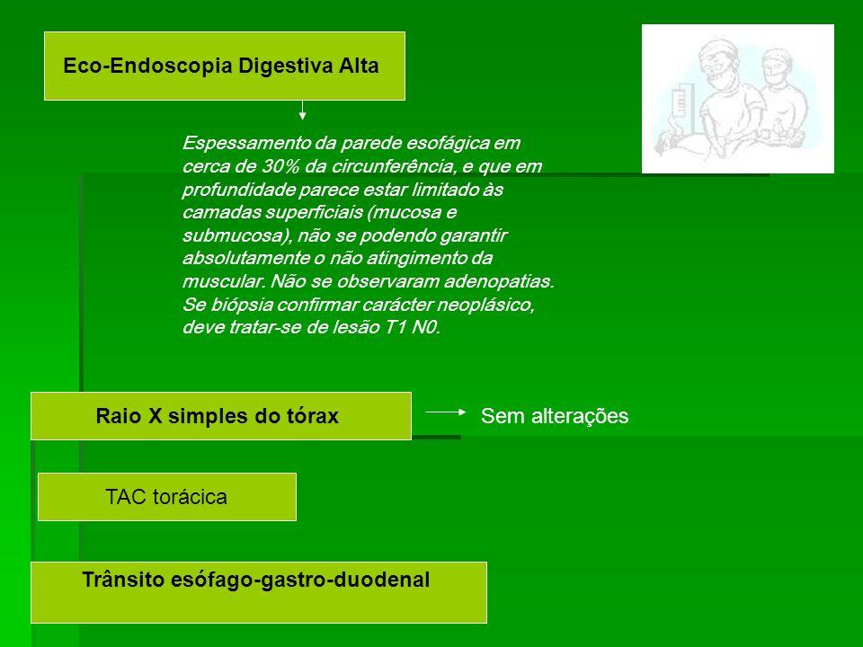 Eco-Endoscopia Digestiva Alta Espessamento da parede esofágica em cerca de 30% da circunferência, e que em profundidade parece estar limitado às camad