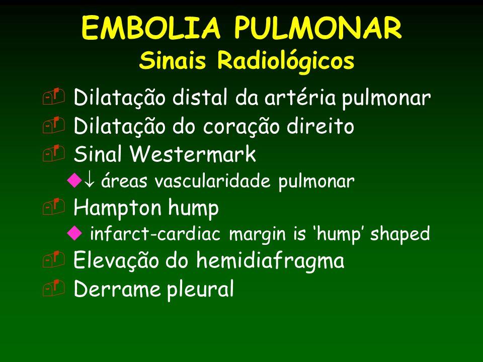 EMBOLIA PULMONAR Sinais Radiológicos Dilatação distal da artéria pulmonar Dilatação do coração direito Sinal Westermark áreas vascularidade pulmonar Hampton hump infarct-cardiac margin is hump shaped Elevação do hemidiafragma Derrame pleural