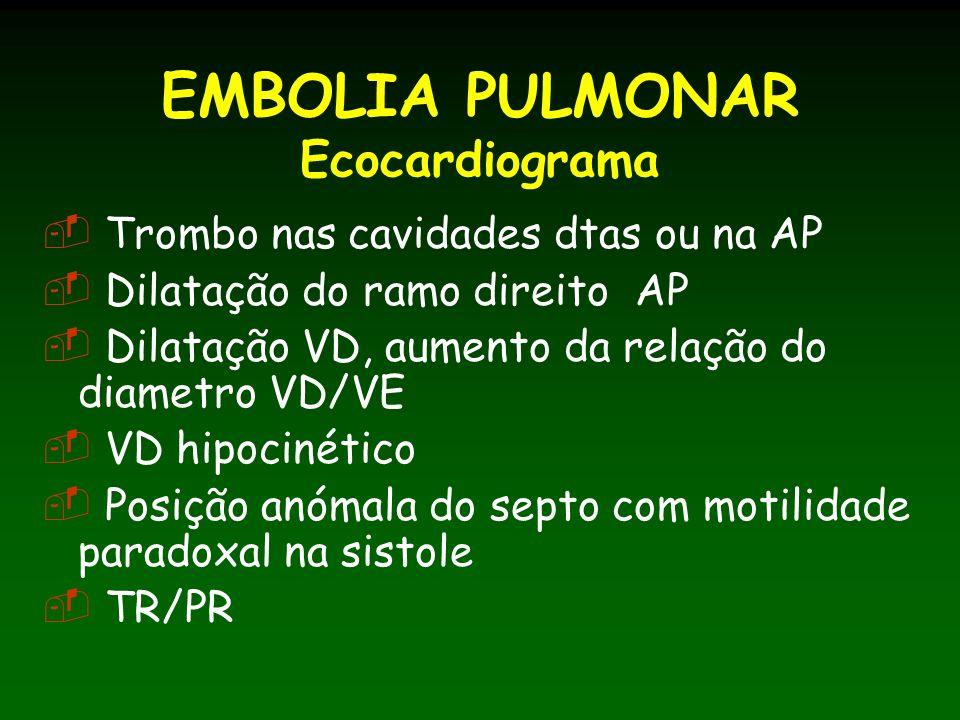 EMBOLIA PULMONAR Ecocardiograma Trombo nas cavidades dtas ou na AP Dilatação do ramo direito AP Dilatação VD, aumento da relação do diametro VD/VE VD hipocinético Posição anómala do septo com motilidade paradoxal na sistole TR/PR