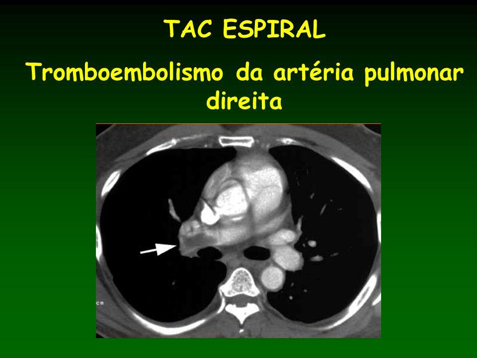 TAC ESPIRAL Tromboembolismo da artéria pulmonar direita