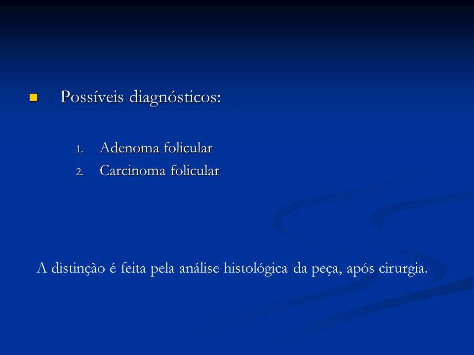 Possíveis diagnósticos: Possíveis diagnósticos: 1.