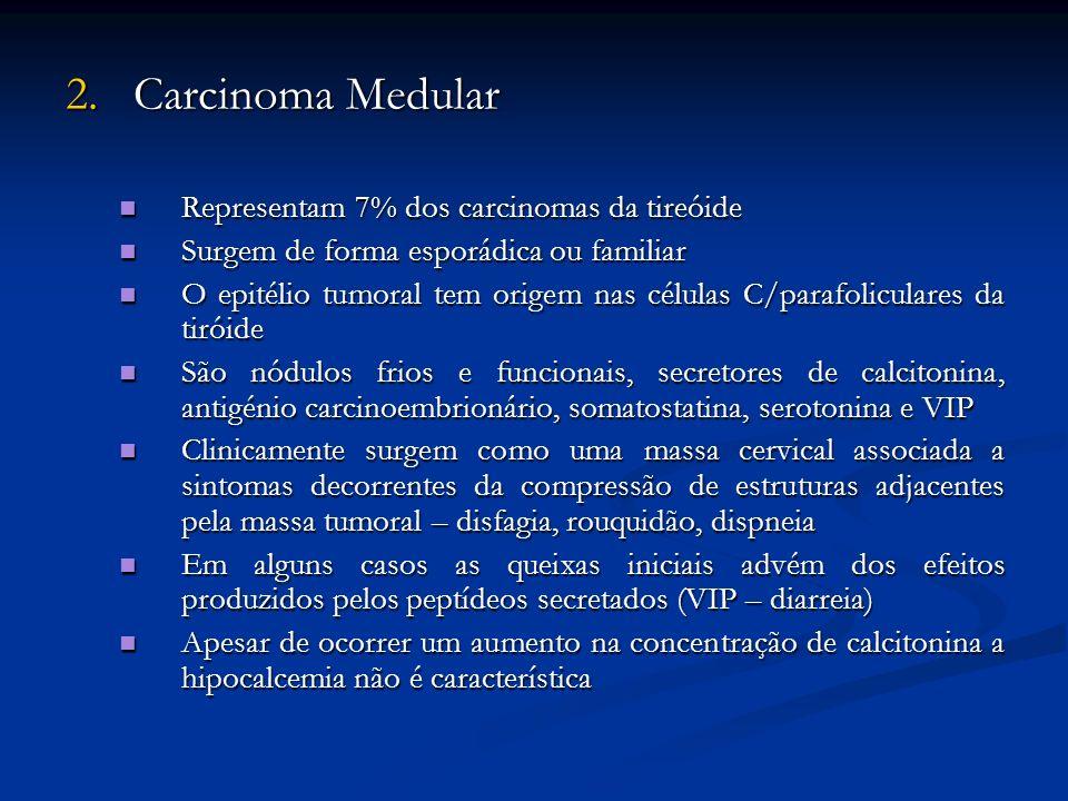 2. Carcinoma Medular Representam 7% dos carcinomas da tireóide Representam 7% dos carcinomas da tireóide Surgem de forma esporádica ou familiar Surgem