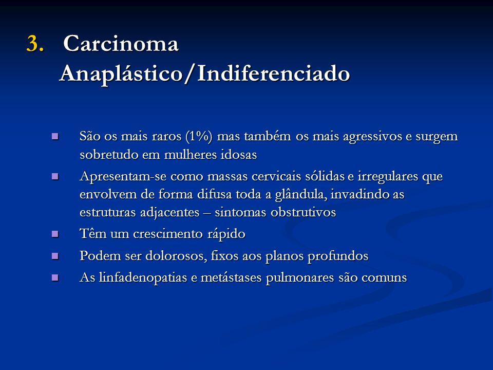 3. Carcinoma Anaplástico/Indiferenciado São os mais raros (1%) mas também os mais agressivos e surgem sobretudo em mulheres idosas São os mais raros (