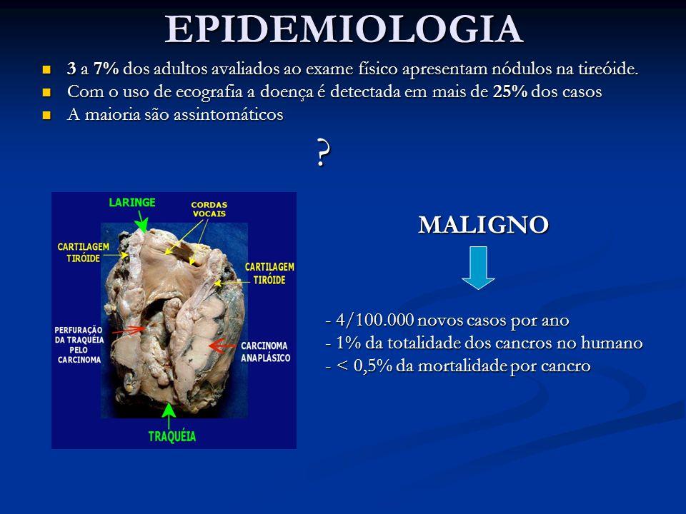 EPIDEMIOLOGIA 3 a 7% dos adultos avaliados ao exame físico apresentam nódulos na tireóide.