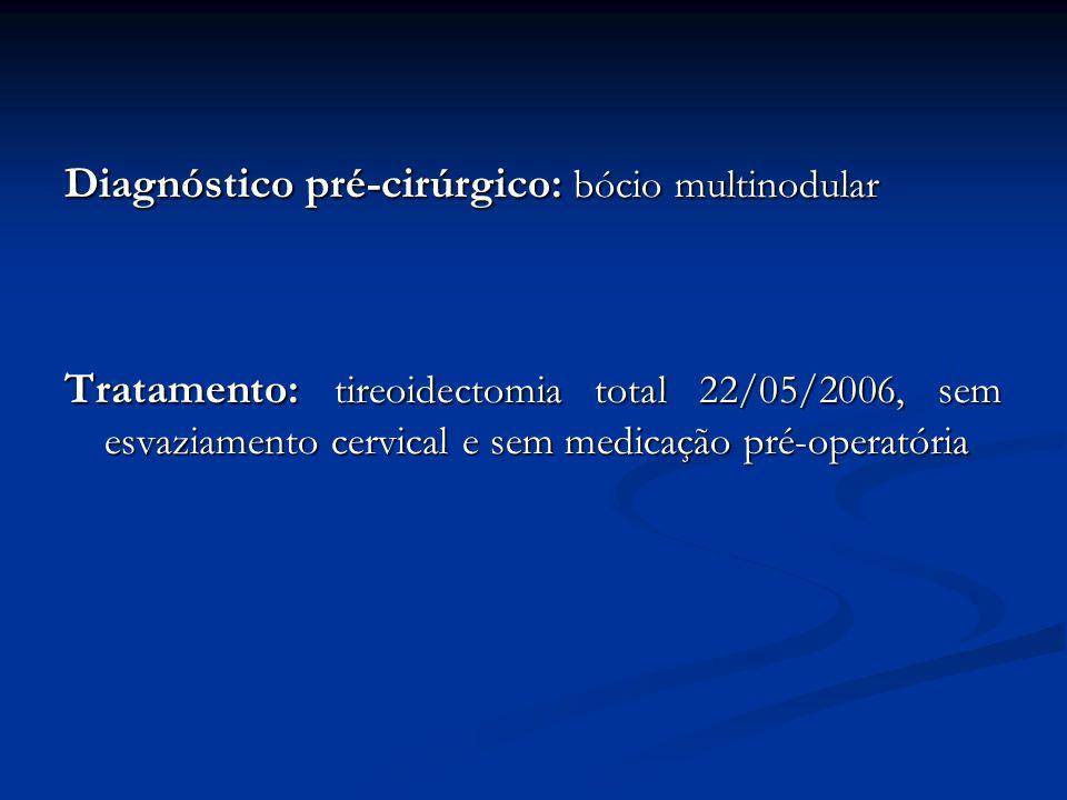 Diagnóstico pré-cirúrgico: bócio multinodular Tratamento: tireoidectomia total 22/05/2006, sem esvaziamento cervical e sem medicação pré-operatória