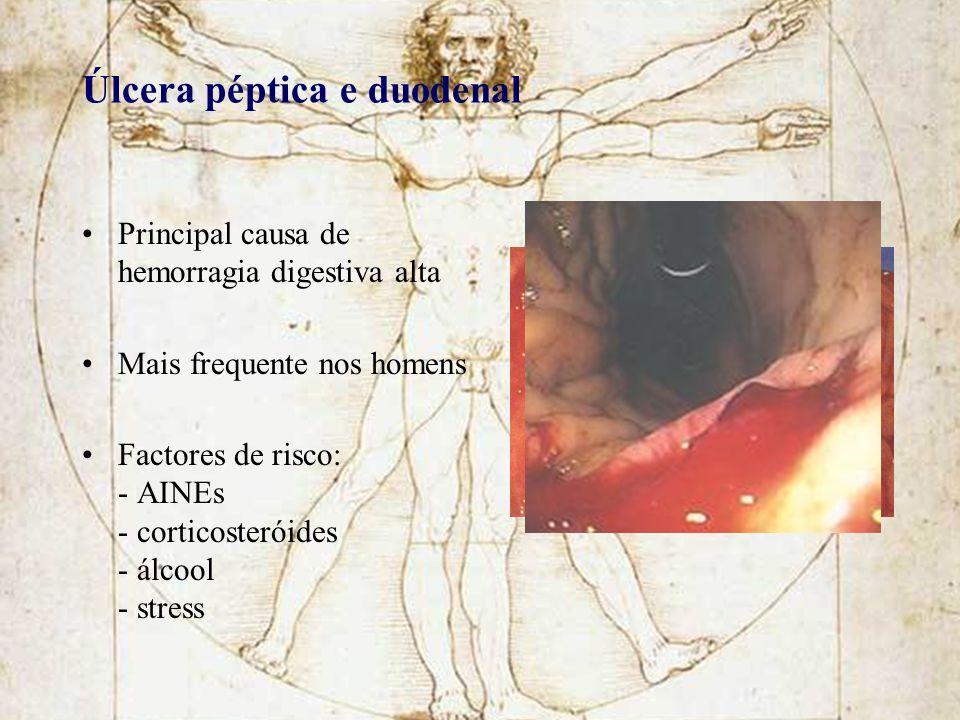 Úlcera péptica e duodenal Principal causa de hemorragia digestiva alta Mais frequente nos homens Factores de risco: - AINEs - corticosteróides - álcoo