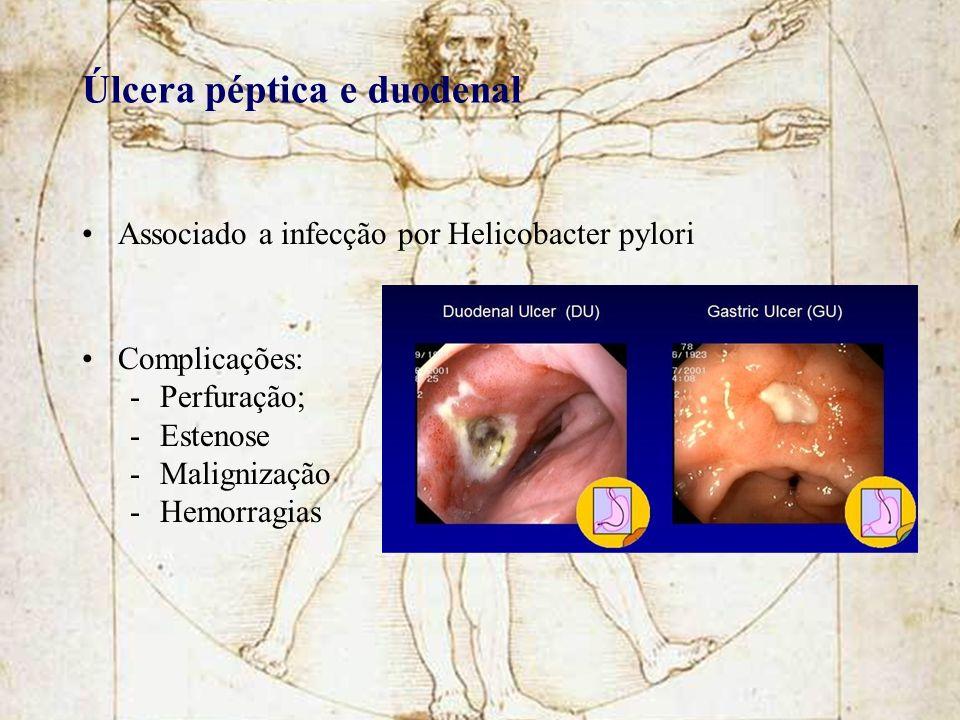 Úlcera péptica e duodenal Associado a infecção por Helicobacter pylori Complicações: -Perfuração; -Estenose -Malignização -Hemorragias