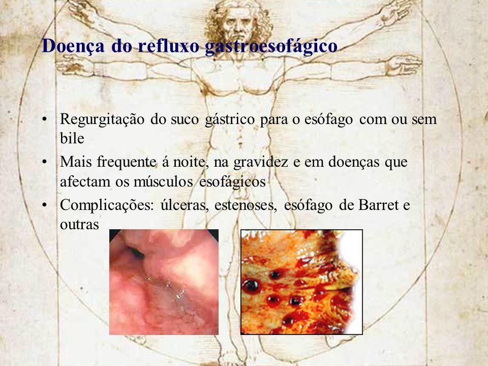 Doença do refluxo gastroesofágico Regurgitação do suco gástrico para o esófago com ou sem bile Mais frequente á noite, na gravidez e em doenças que af