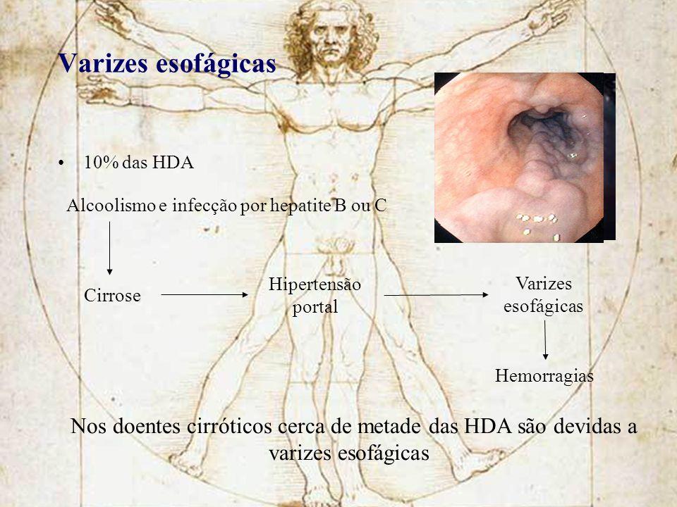 Varizes esofágicas 10% das HDA Cirrose Hipertensão portal Varizes esofágicas Hemorragias Nos doentes cirróticos cerca de metade das HDA são devidas a