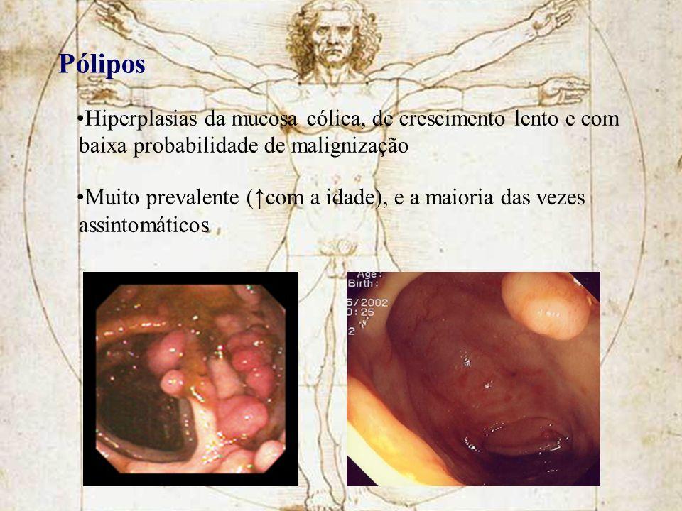 Pólipos Hiperplasias da mucosa cólica, de crescimento lento e com baixa probabilidade de malignização Muito prevalente (com a idade), e a maioria das
