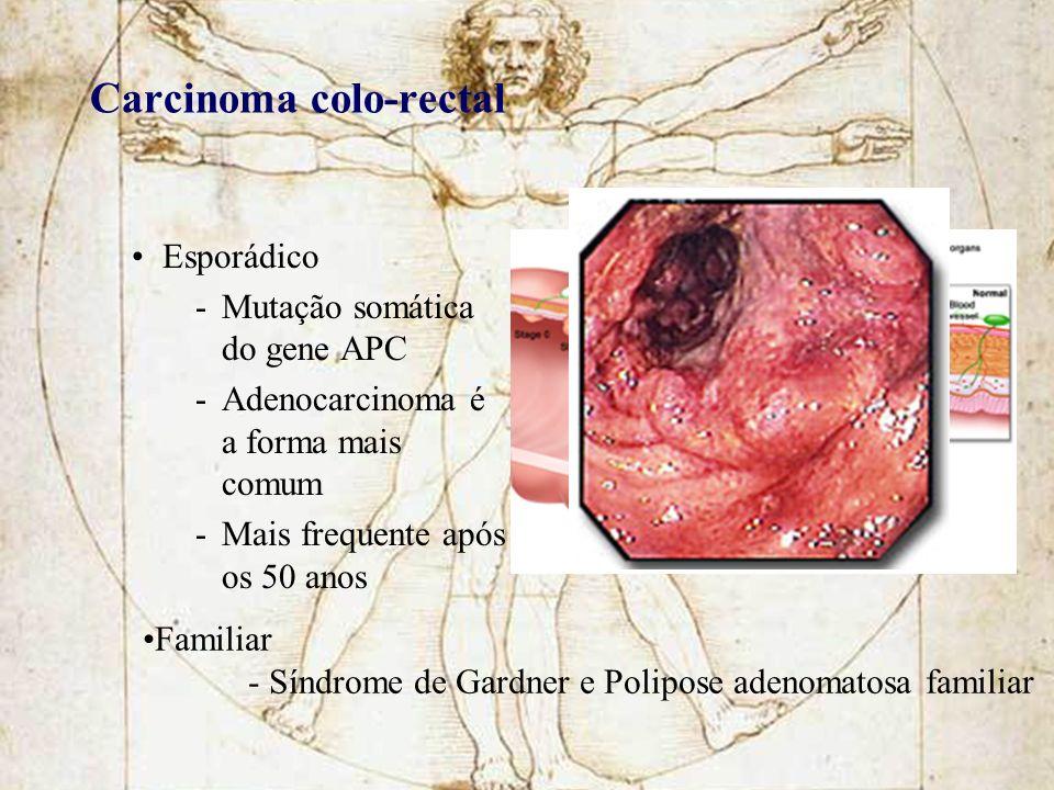 Carcinoma colo-rectal Esporádico -Mutação somática do gene APC -Adenocarcinoma é a forma mais comum -Mais frequente após os 50 anos Familiar - Síndrom