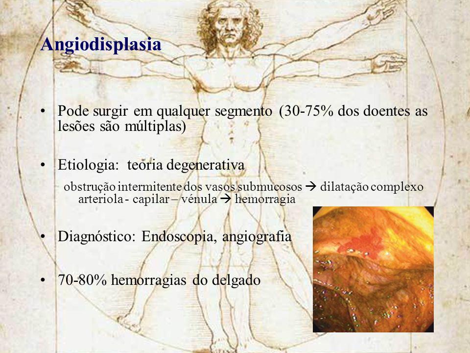 Angiodisplasia Pode surgir em qualquer segmento (30-75% dos doentes as lesões são múltiplas) Etiologia: teoria degenerativa obstrução intermitente dos