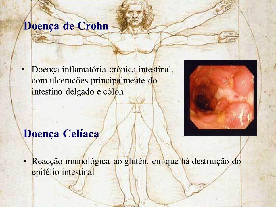 Doença de Crohn Doença inflamatória crónica intestinal, com ulcerações principalmente do intestino delgado e cólon Doença Celíaca Reacção imunológica