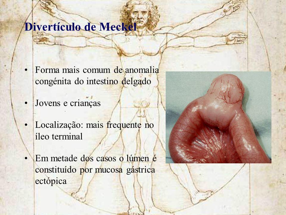 Divertículo de Meckel Forma mais comum de anomalia congénita do intestino delgado Jovens e crianças Localização: mais frequente no íleo terminal Em me