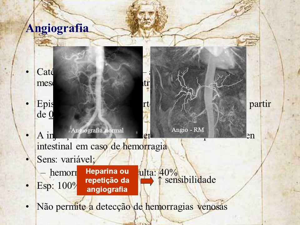 Angiografia Catéter na artéria femoral – artéria aorta – artéria mesentérica superior – contraste Episódios de hemorragia arterial activa detectáveis