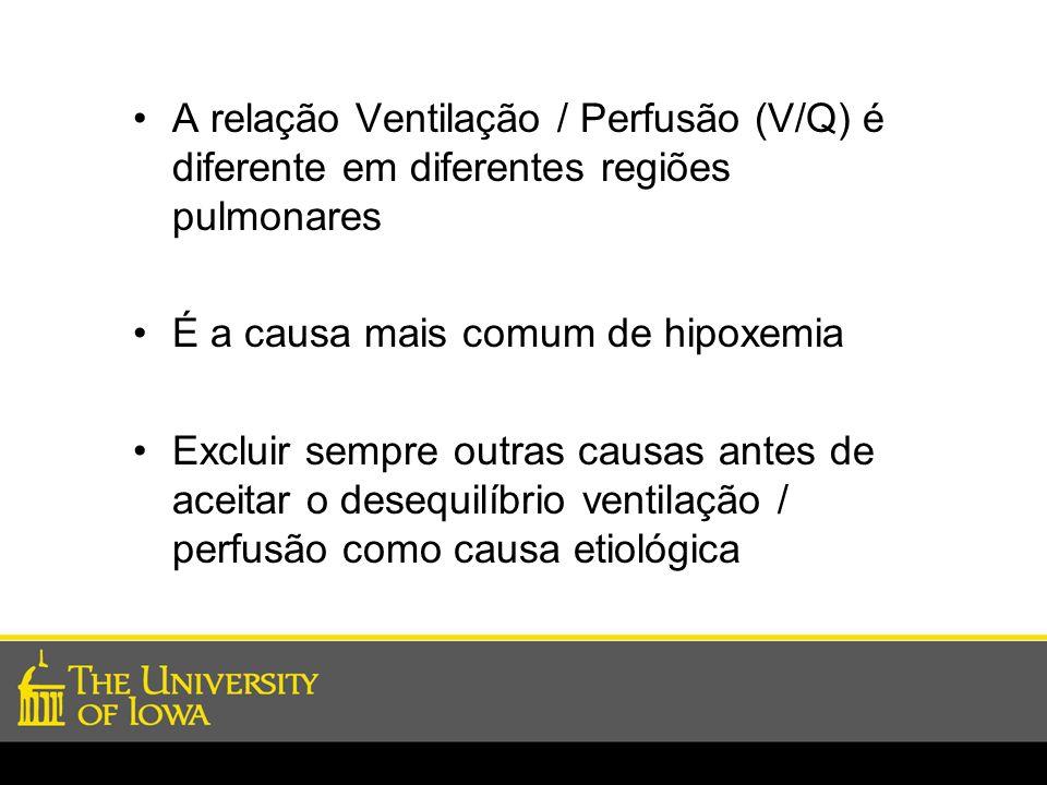 A relação Ventilação / Perfusão (V/Q) é diferente em diferentes regiões pulmonares É a causa mais comum de hipoxemia Excluir sempre outras causas ante