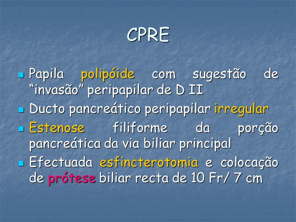 CPRE Papila polipóide com sugestão de invasão peripapilar de D II Papila polipóide com sugestão de invasão peripapilar de D II Ducto pancreático perip