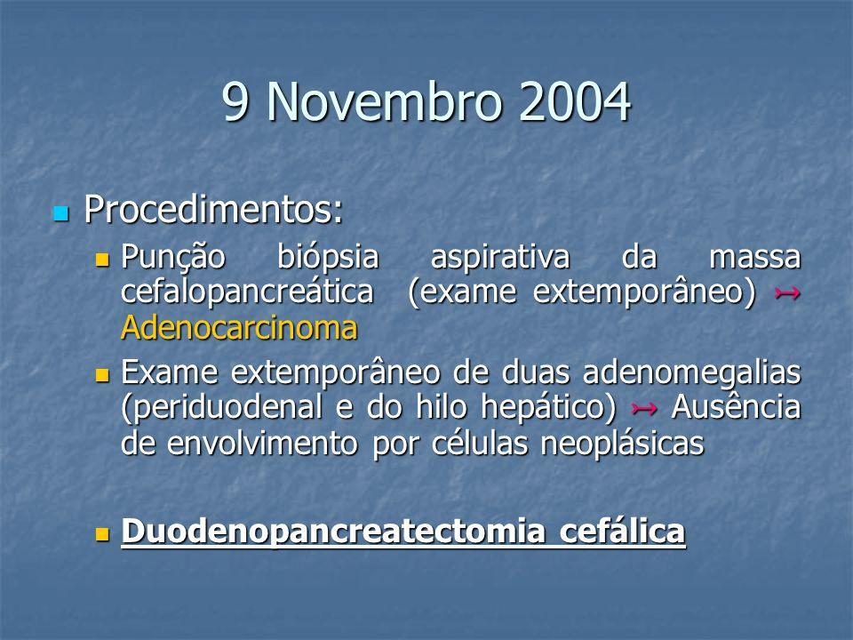 9 Novembro 2004 Procedimentos: Procedimentos: Punção biópsia aspirativa da massa cefalopancreática (exame extemporâneo) Adenocarcinoma Punção biópsia