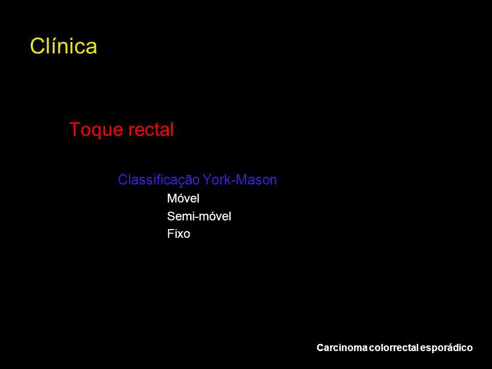 Clínica Carcinoma colorrectal esporádico Toque rectal Classificação York-Mason Móvel Semi-móvel Fixo