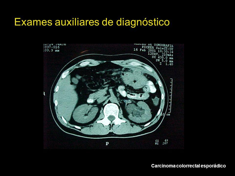Exames auxiliares de diagnóstico Carcinoma colorrectal esporádico