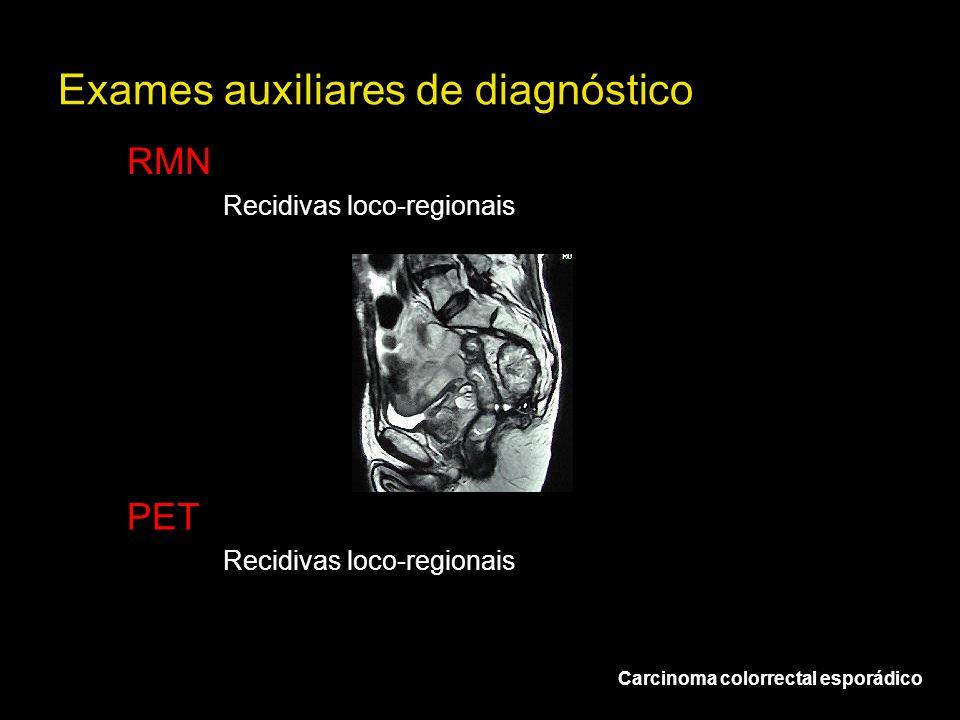 Exames auxiliares de diagnóstico RMN Recidivas loco-regionais Carcinoma colorrectal esporádico PET Recidivas loco-regionais