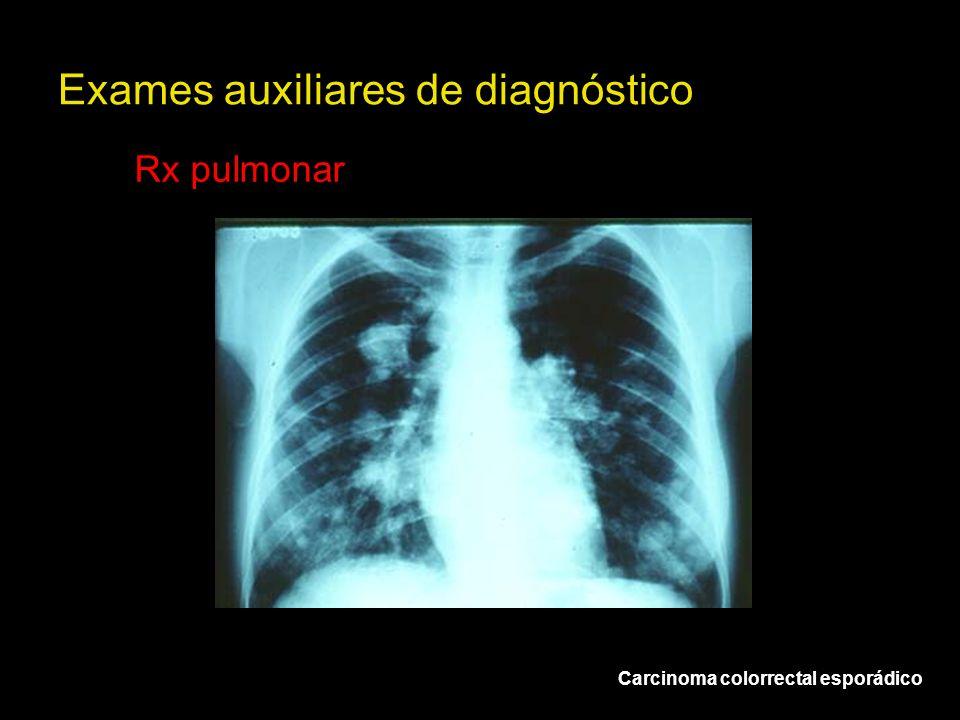 Exames auxiliares de diagnóstico Rx pulmonar Carcinoma colorrectal esporádico