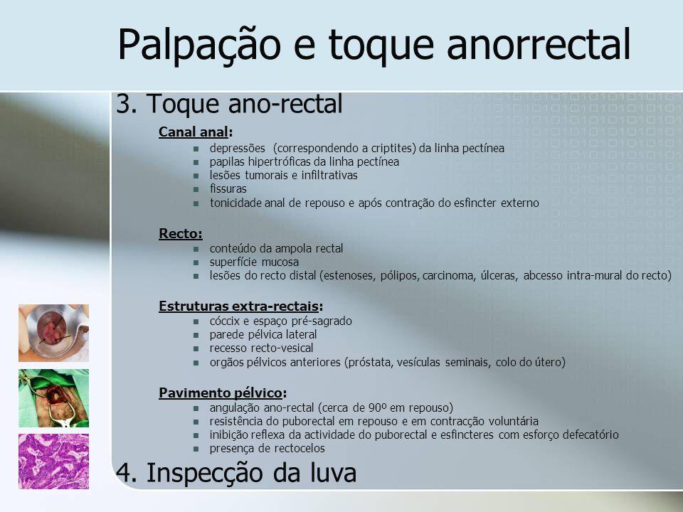 Palpação e toque anorrectal 3. Toque ano-rectal Canal anal: depressões (correspondendo a criptites) da linha pectínea papilas hipertróficas da linha p