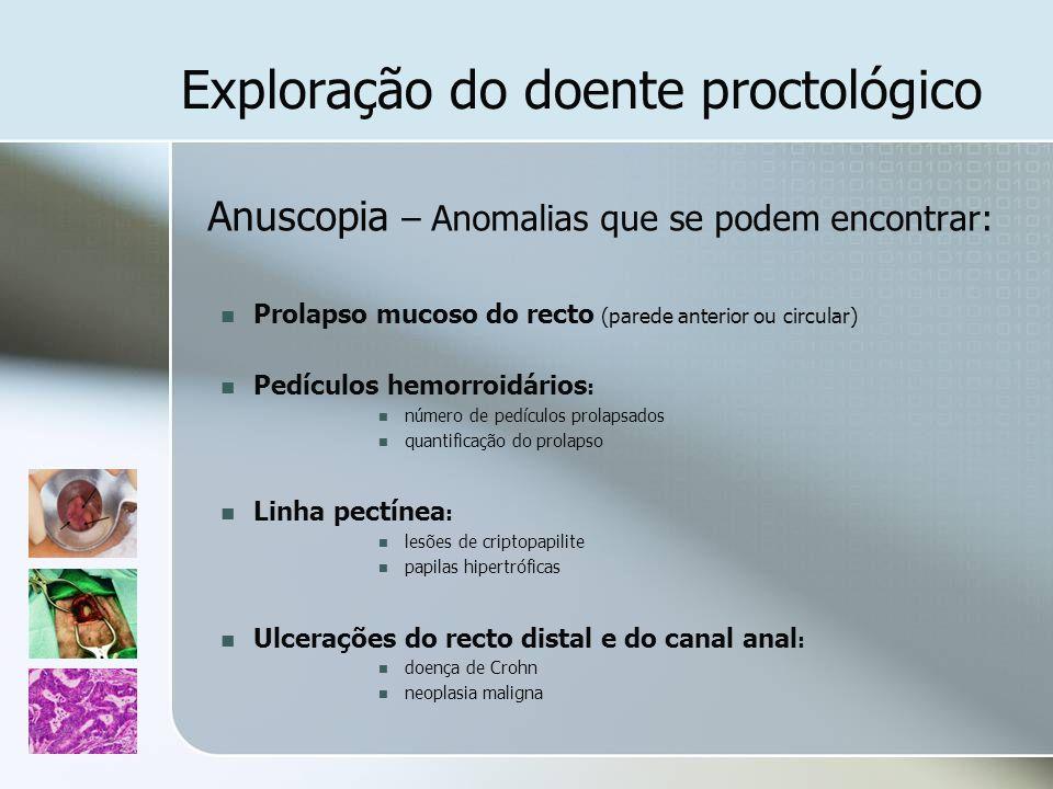 Exploração do doente proctológico Anuscopia – Anomalias que se podem encontrar: Prolapso mucoso do recto (parede anterior ou circular) Pedículos hemor