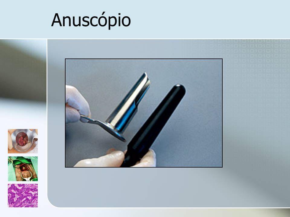 Anuscópio