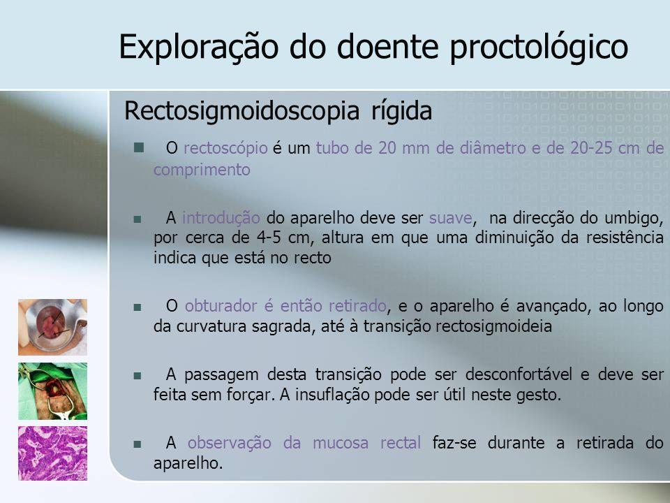 Exploração do doente proctológico Rectosigmoidoscopia rígida O rectoscópio é um tubo de 20 mm de diâmetro e de 20-25 cm de comprimento A introdução do