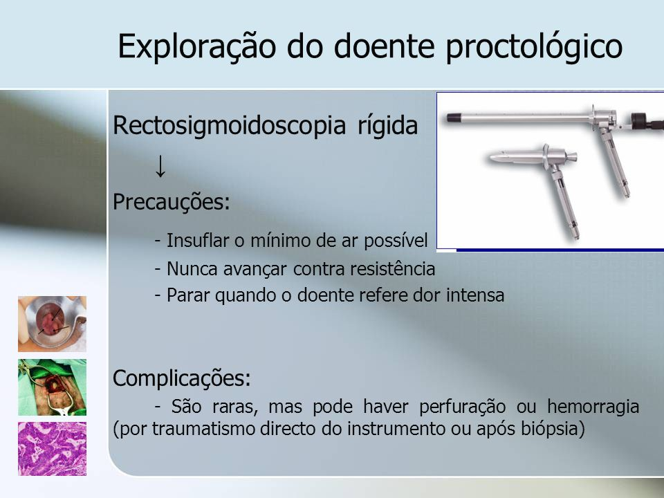 Exploração do doente proctológico Rectosigmoidoscopia rígida Precauções: - Insuflar o mínimo de ar possível - Nunca avançar contra resistência - Parar