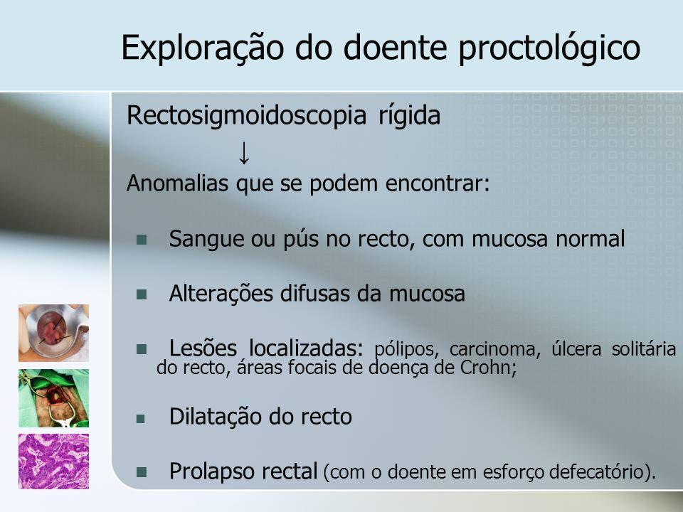 Exploração do doente proctológico Rectosigmoidoscopia rígida Anomalias que se podem encontrar: Sangue ou pús no recto, com mucosa normal Alterações di
