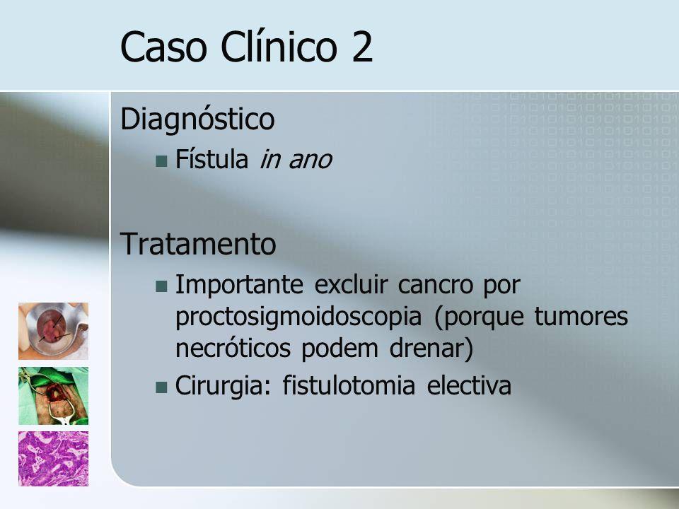 Caso Clínico 2 Diagnóstico Fístula in ano Tratamento Importante excluir cancro por proctosigmoidoscopia (porque tumores necróticos podem drenar) Cirur