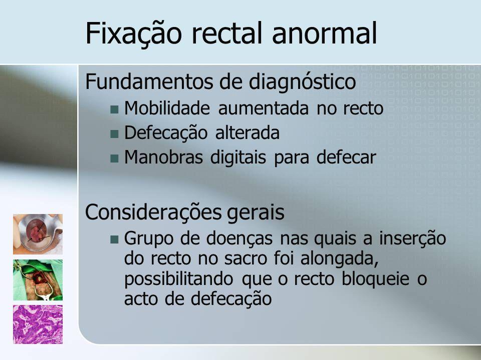 Fixação rectal anormal Fundamentos de diagnóstico Mobilidade aumentada no recto Defecação alterada Manobras digitais para defecar Considerações gerais