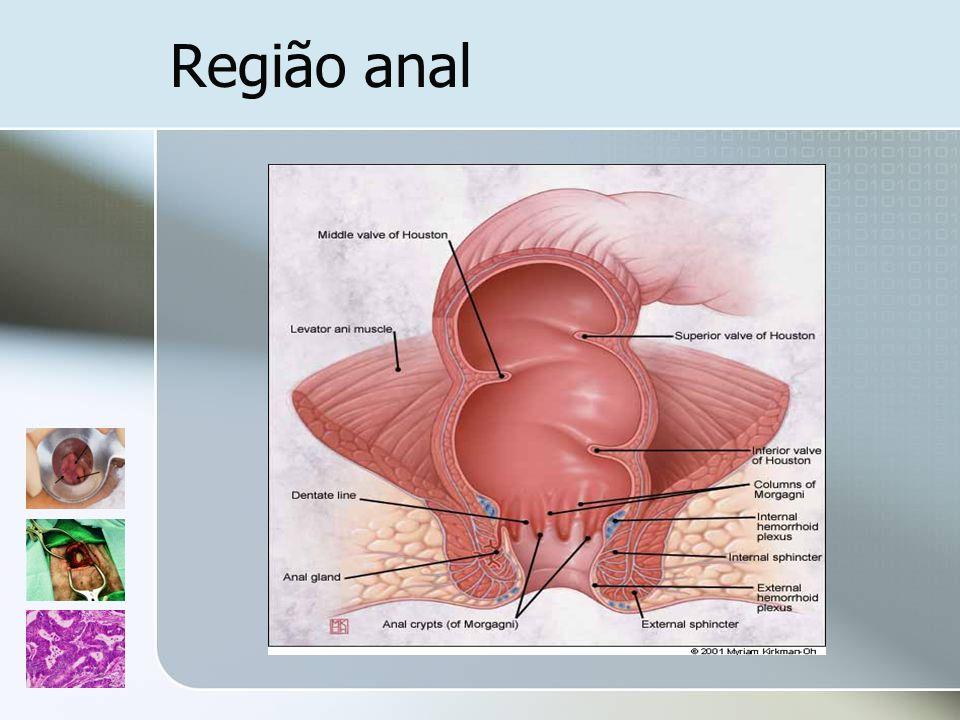 Hemorróides Hemorróides internas: Sangue vermelho vivo pelo recto Secreção de muco Desconforto ou plenitude rectal Coxins de tecido vascular e conjuntivo que se originam acima da linha pectínea e são revestidos por mucosa rectal ou de transição Hemorróides externas: Dor perianal súbita e intensa Massa perianal Complexos vasculares que ficam subjacentes à derme anal ricamente inervada