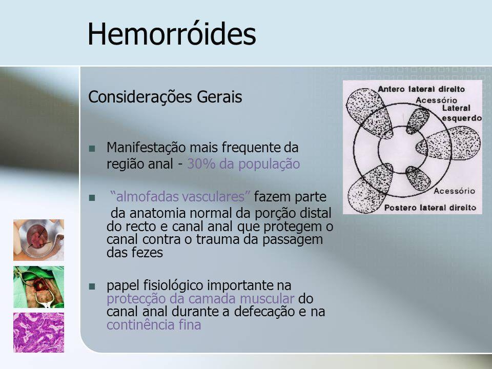 Hemorróides Considerações Gerais Manifestação mais frequente da região anal - 30% da população almofadas vasculares fazem parte da anatomia normal da