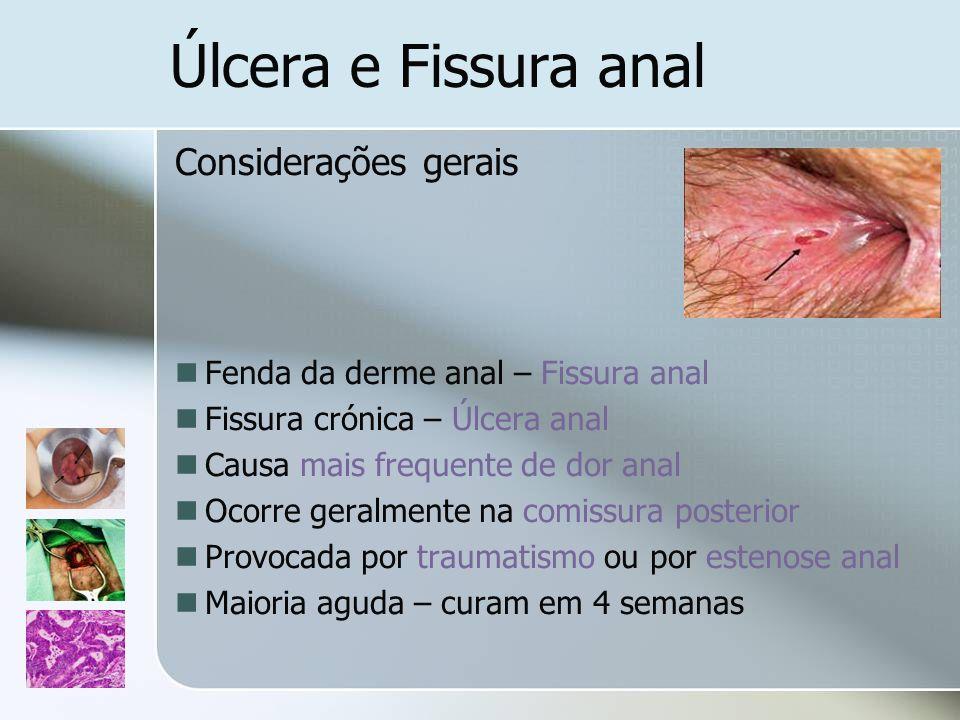 Úlcera e Fissura anal Considerações gerais Fenda da derme anal – Fissura anal Fissura crónica – Úlcera anal Causa mais frequente de dor anal Ocorre ge