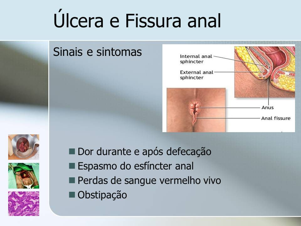 Úlcera e Fissura anal Sinais e sintomas Dor durante e após defecação Espasmo do esfíncter anal Perdas de sangue vermelho vivo Obstipação