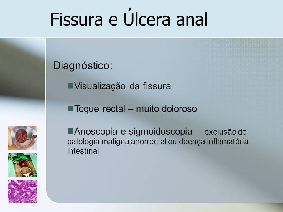 Fissura e Úlcera anal Diagnóstico: Visualização da fissura Toque rectal – muito doloroso Anoscopia e sigmoidoscopia – exclusão de patologia maligna an