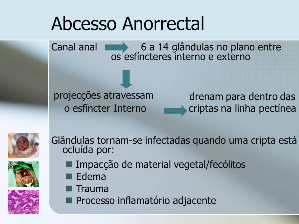 Abcesso Anorrectal Canal anal 6 a 14 glândulas no plano entre os esfíncteres interno e externo Glândulas tornam-se infectadas quando uma cripta está o