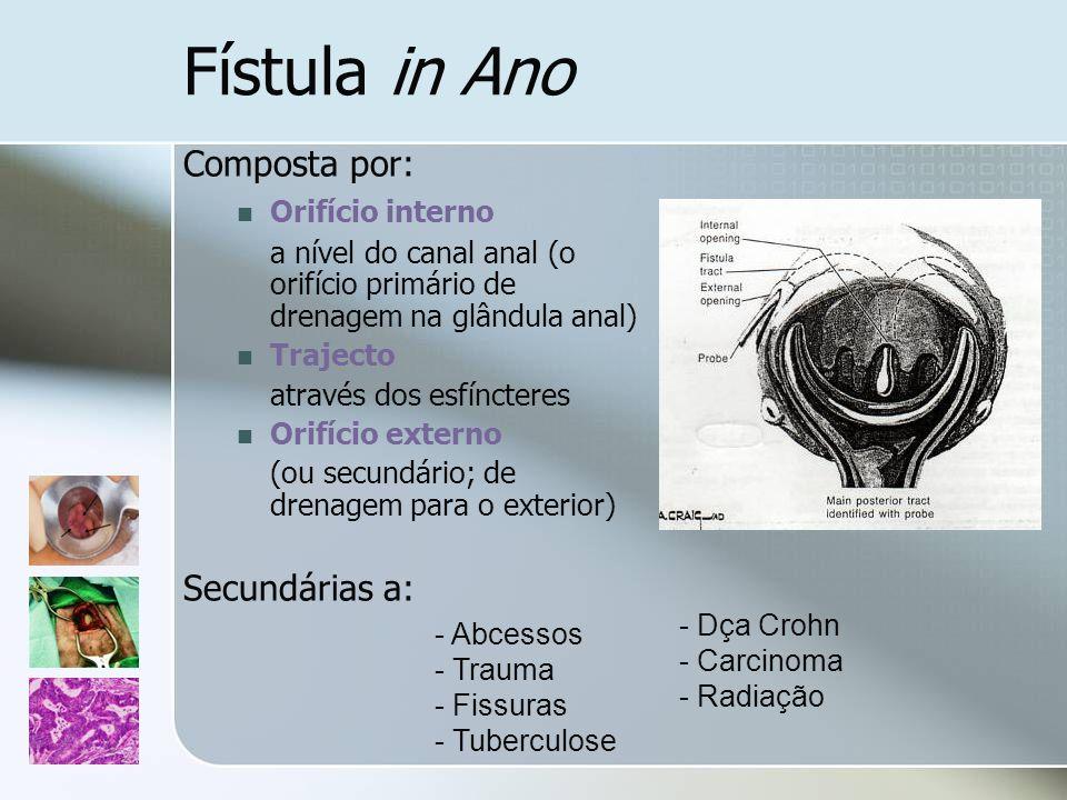 Fístula in Ano Composta por: Orifício interno a nível do canal anal (o orifício primário de drenagem na glândula anal) Trajecto através dos esfínctere