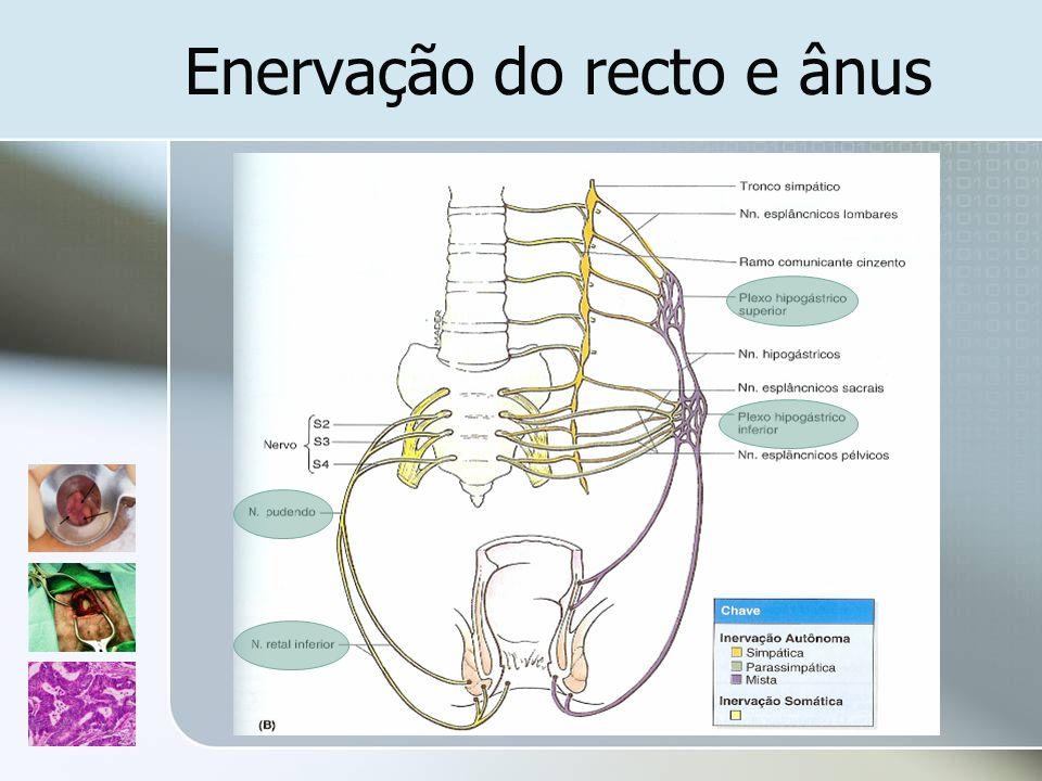 Fístula Recto-Vaginal Considerações gerais Lesão obstrética, doença de Crohn, diverticulite, radiação, trauma por corpo estranho, neoplasias Classificadas em baixas, médias ou altas