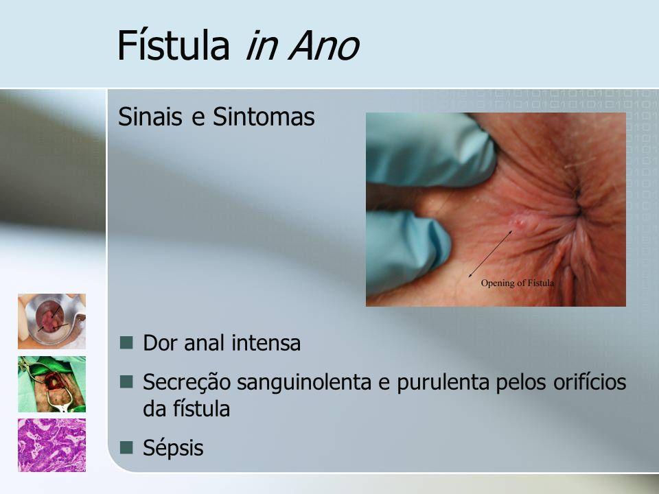 Fístula in Ano Sinais e Sintomas Dor anal intensa Secreção sanguinolenta e purulenta pelos orifícios da fístula Sépsis