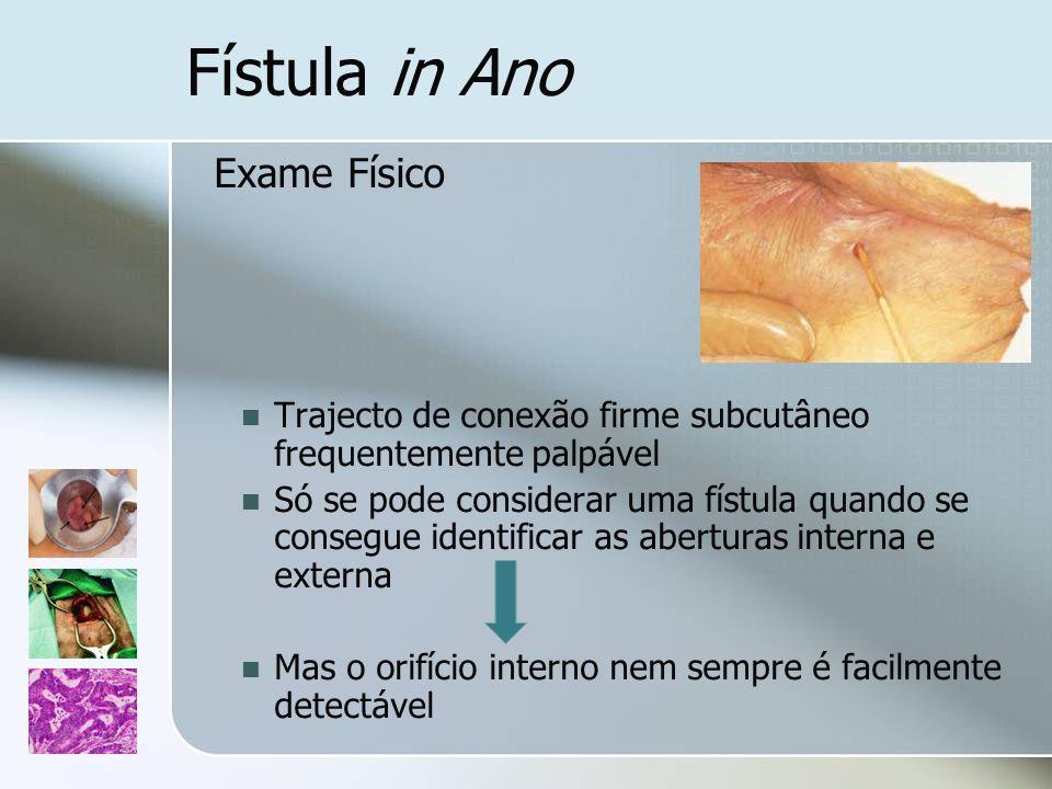 Fístula in Ano Exame Físico Trajecto de conexão firme subcutâneo frequentemente palpável Só se pode considerar uma fístula quando se consegue identifi