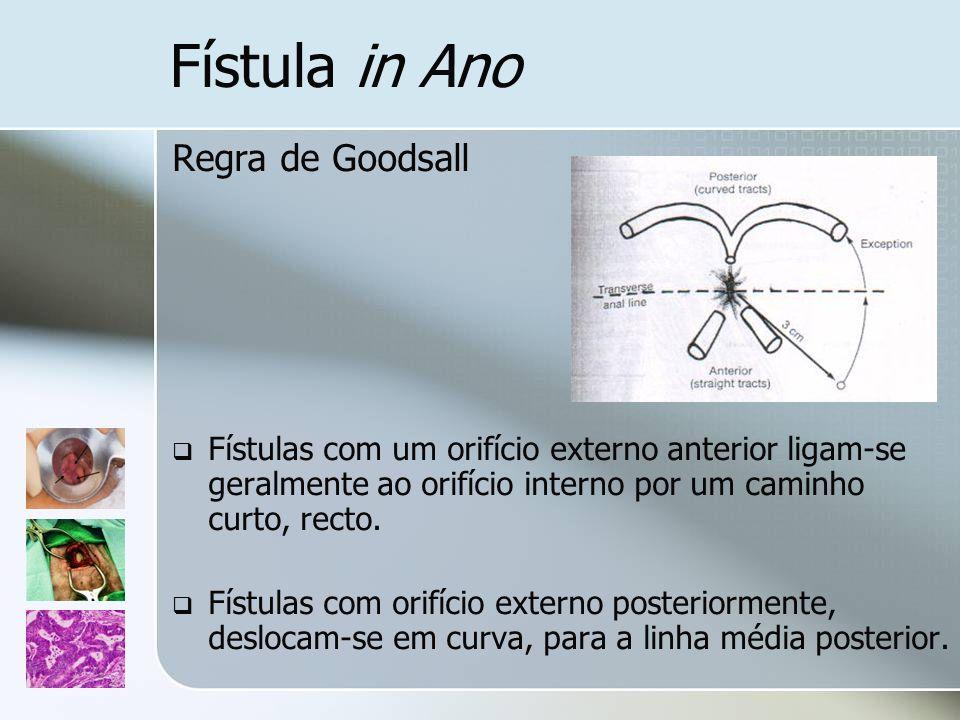 Fístula in Ano Regra de Goodsall Fístulas com um orifício externo anterior ligam-se geralmente ao orifício interno por um caminho curto, recto. Fístul