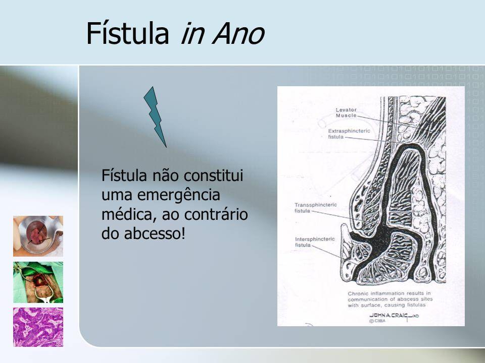 Fístula in Ano Fístula não constitui uma emergência médica, ao contrário do abcesso!
