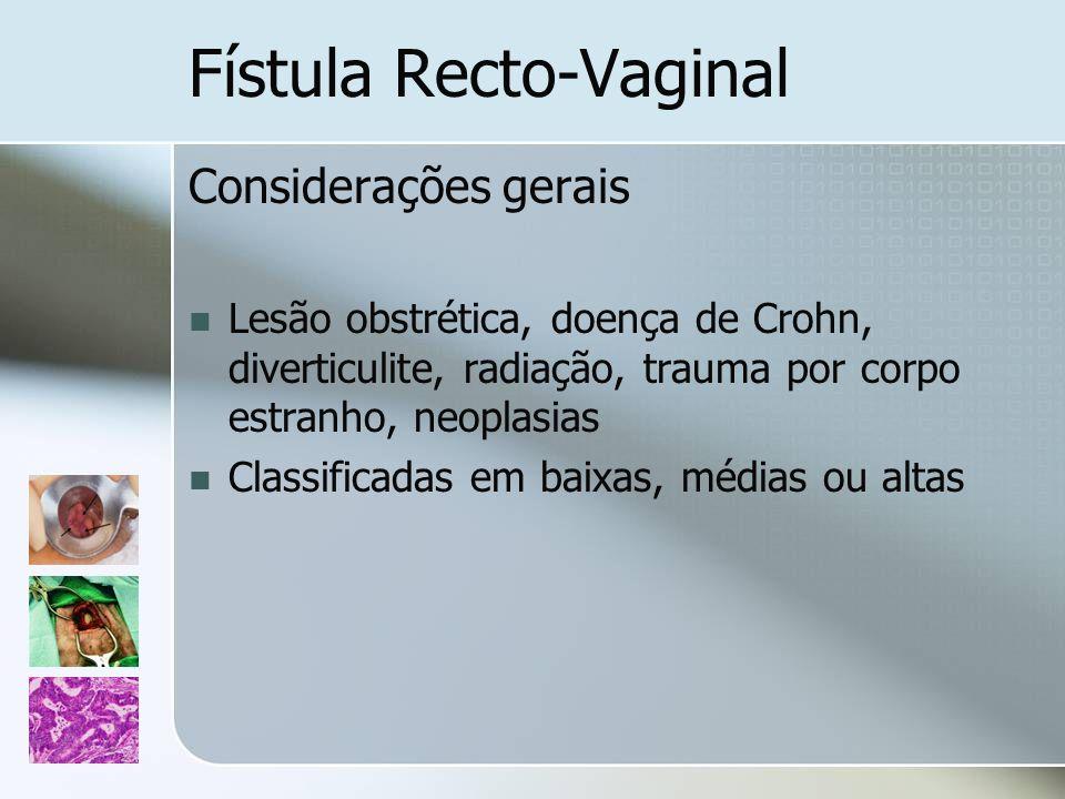 Fístula Recto-Vaginal Considerações gerais Lesão obstrética, doença de Crohn, diverticulite, radiação, trauma por corpo estranho, neoplasias Classific