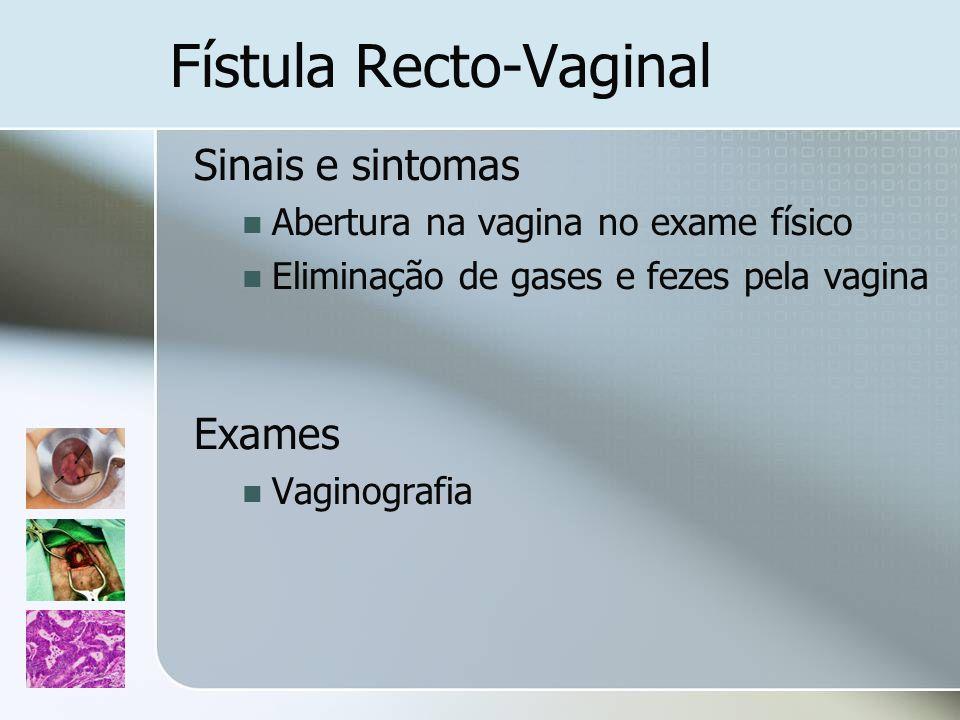 Fístula Recto-Vaginal Sinais e sintomas Abertura na vagina no exame físico Eliminação de gases e fezes pela vagina Exames Vaginografia